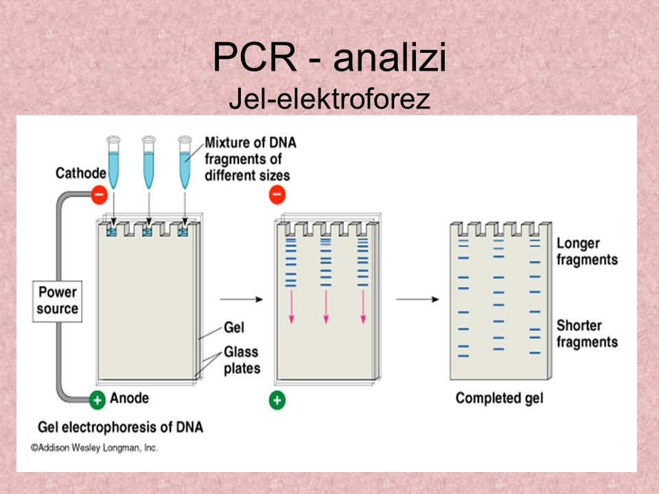 PCR - analizi Jel-elektroforez