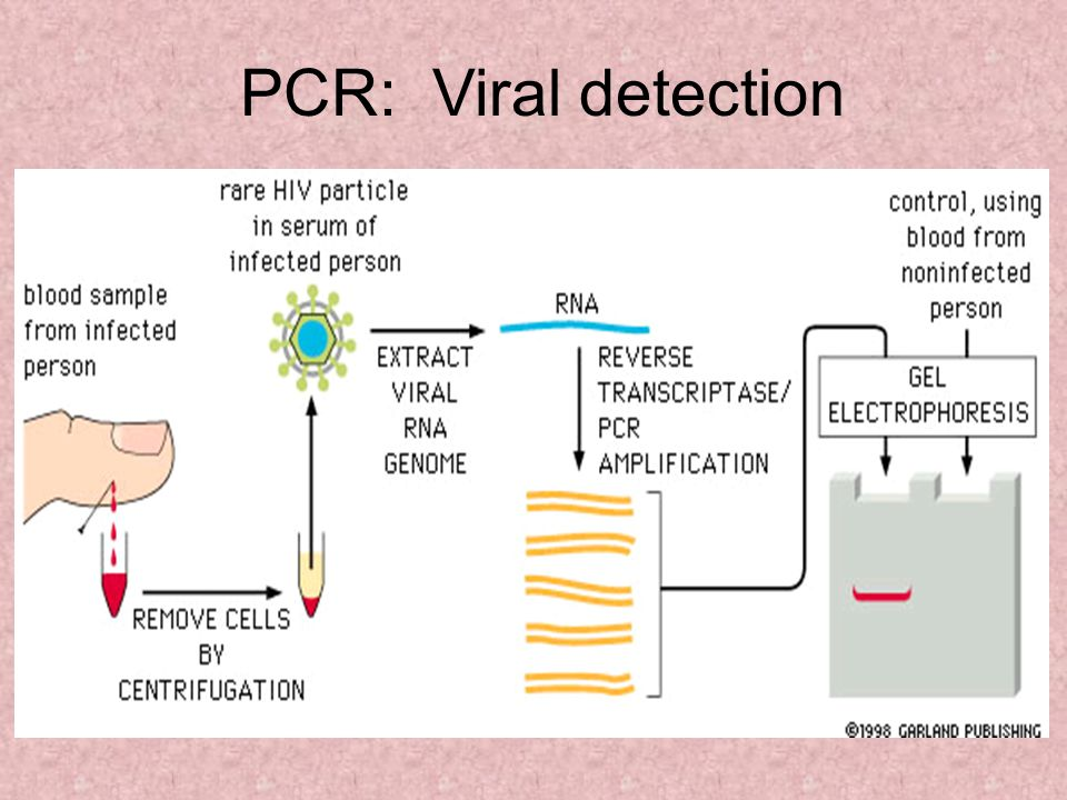 PCR: Viral detection