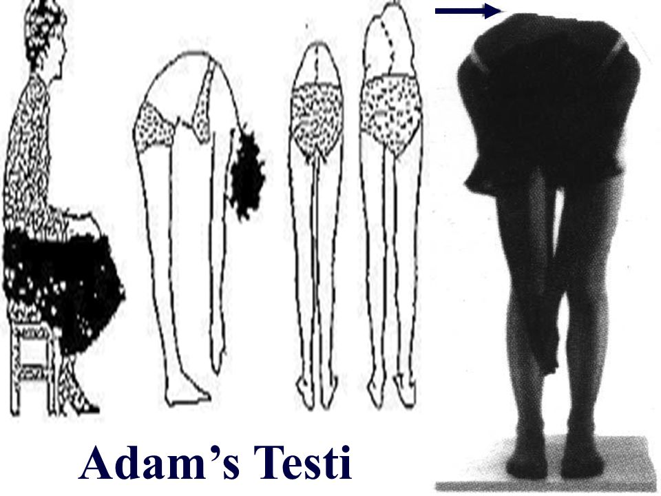 30 Adam's Testi
