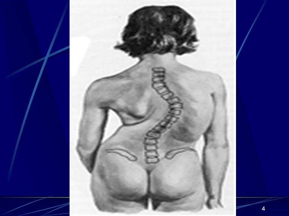 5 Skolyoz bir hastalık değil, bir bulgudur ve pek çok hastalığın ortak bulgusu olarak karşımıza çıkabilir Skolyoza çoğu hastada vertebralardaki rotasyonel bir deformite de eşlik eder ve bu durum kendisini kaburga kamburluğu (rib hump), skapular belirginlik ve belde düzleşme olarak belli eder