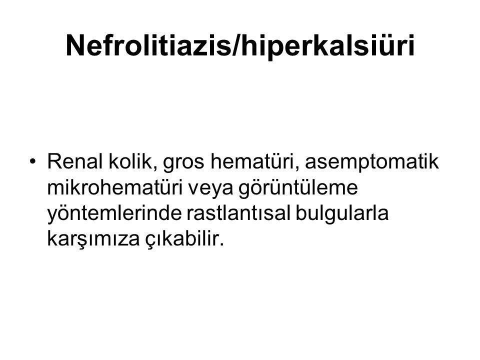 Nefrolitiazis/hiperkalsiüri Renal kolik, gros hematüri, asemptomatik mikrohematüri veya görüntüleme yöntemlerinde rastlantısal bulgularla karşımıza çı