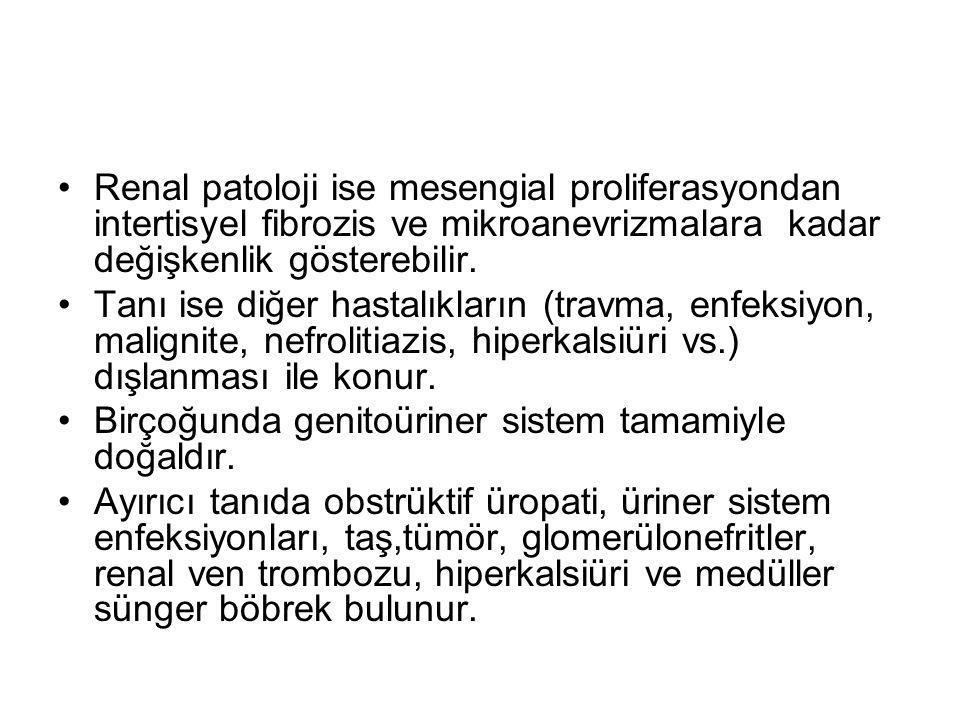 Renal patoloji ise mesengial proliferasyondan intertisyel fibrozis ve mikroanevrizmalara kadar değişkenlik gösterebilir. Tanı ise diğer hastalıkların