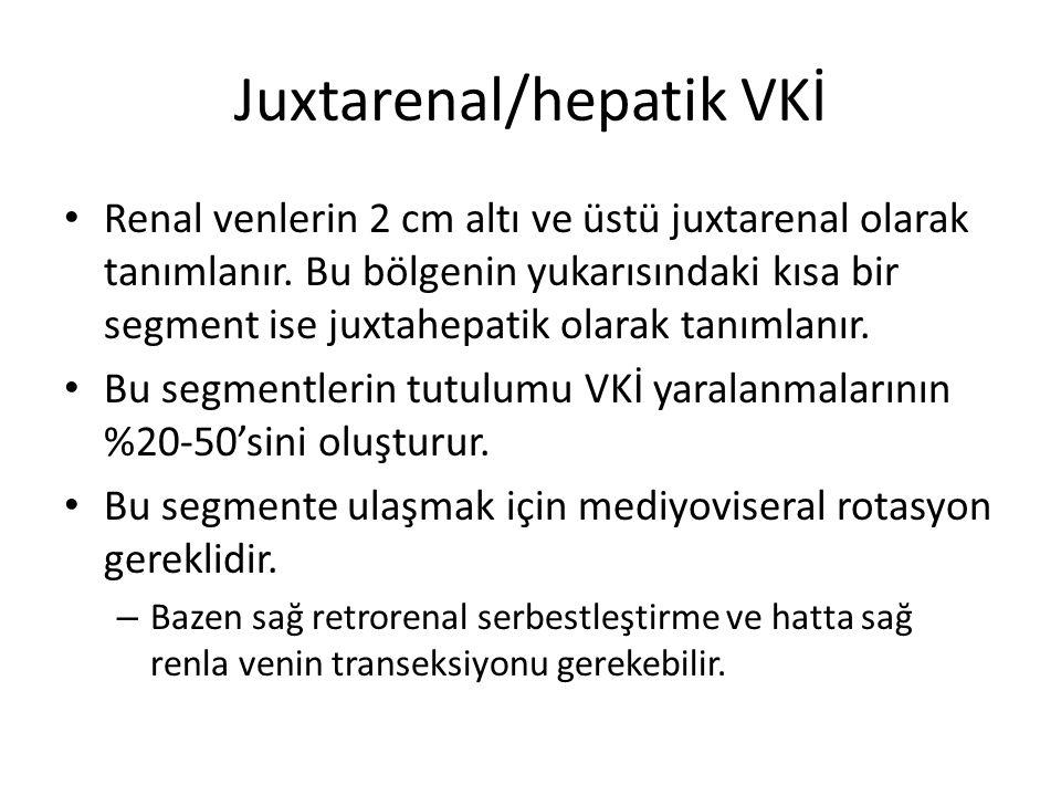 Juxtarenal/hepatik VKİ Renal venlerin 2 cm altı ve üstü juxtarenal olarak tanımlanır. Bu bölgenin yukarısındaki kısa bir segment ise juxtahepatik olar
