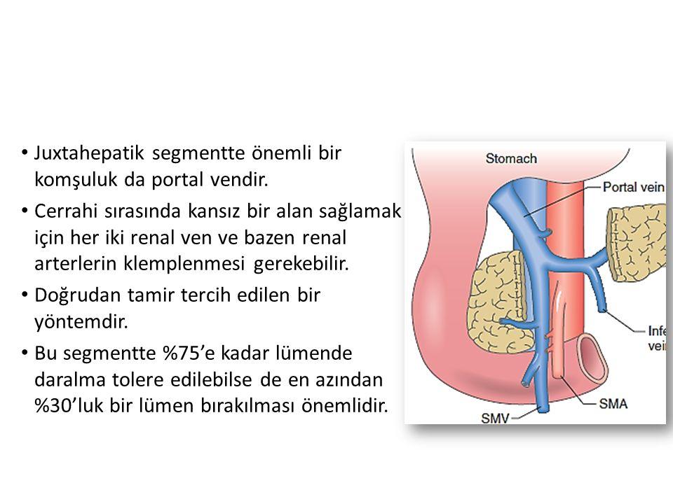 Juxtahepatik segmentte önemli bir komşuluk da portal vendir. Cerrahi sırasında kansız bir alan sağlamak için her iki renal ven ve bazen renal arterler