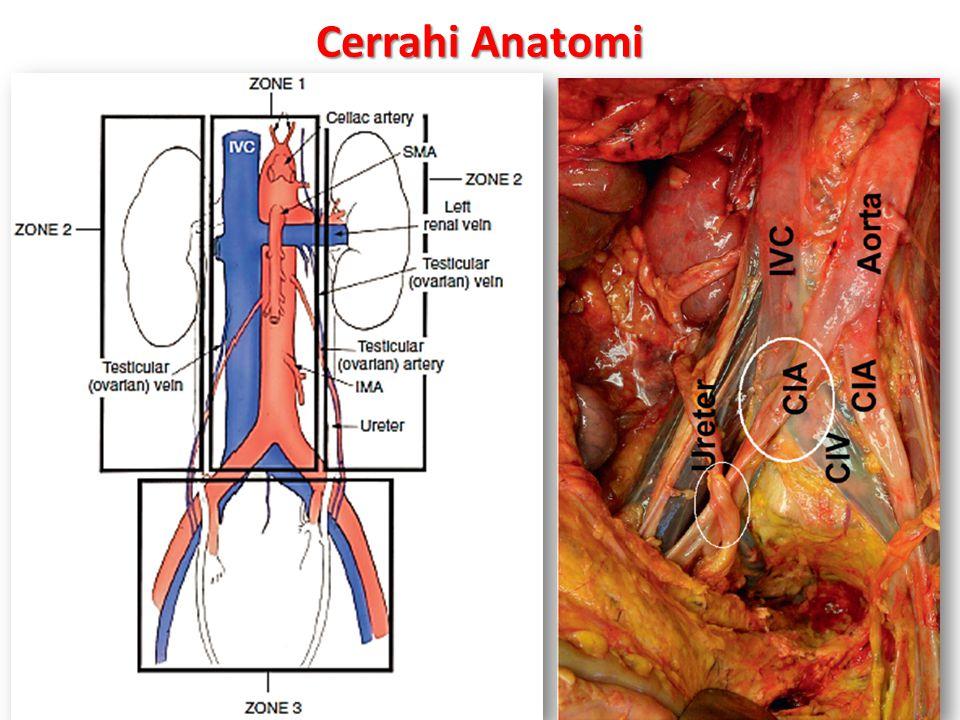 Cattell Manevrası (Cattel et al, right colon and base of the mesentery.