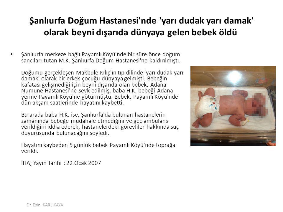 Şanlıurfa Doğum Hastanesi'nde 'yarı dudak yarı damak' olarak beyni dışarıda dünyaya gelen bebek öldü Şanlıurfa merkeze bağlı Payamlı Köyü'nde bir süre