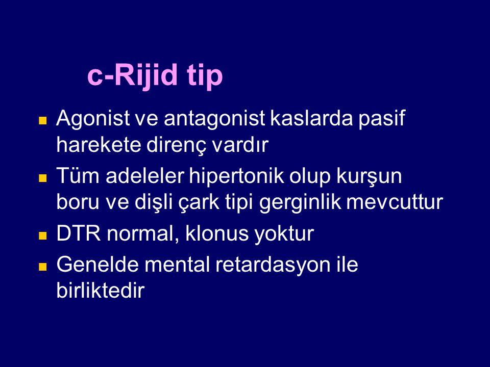 c-Rijid tip Agonist ve antagonist kaslarda pasif harekete direnç vardır Tüm adeleler hipertonik olup kurşun boru ve dişli çark tipi gerginlik mevcuttu