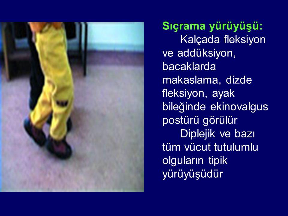 Sıçrama yürüyüşü: Kalçada fleksiyon ve addüksiyon, bacaklarda makaslama, dizde fleksiyon, ayak bileğinde ekinovalgus postürü görülür Diplejik ve bazı