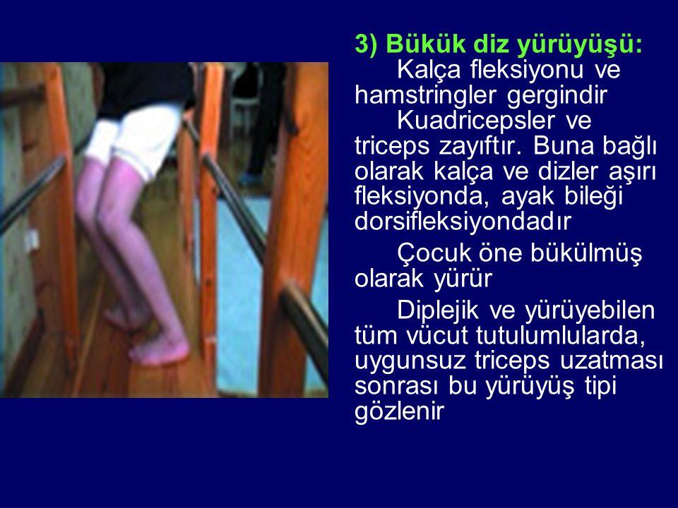 3) Bükük diz yürüyüşü: Kalça fleksiyonu ve hamstringler gergindir Kuadricepsler ve triceps zayıftır. Buna bağlı olarak kalça ve dizler aşırı fleksiyon