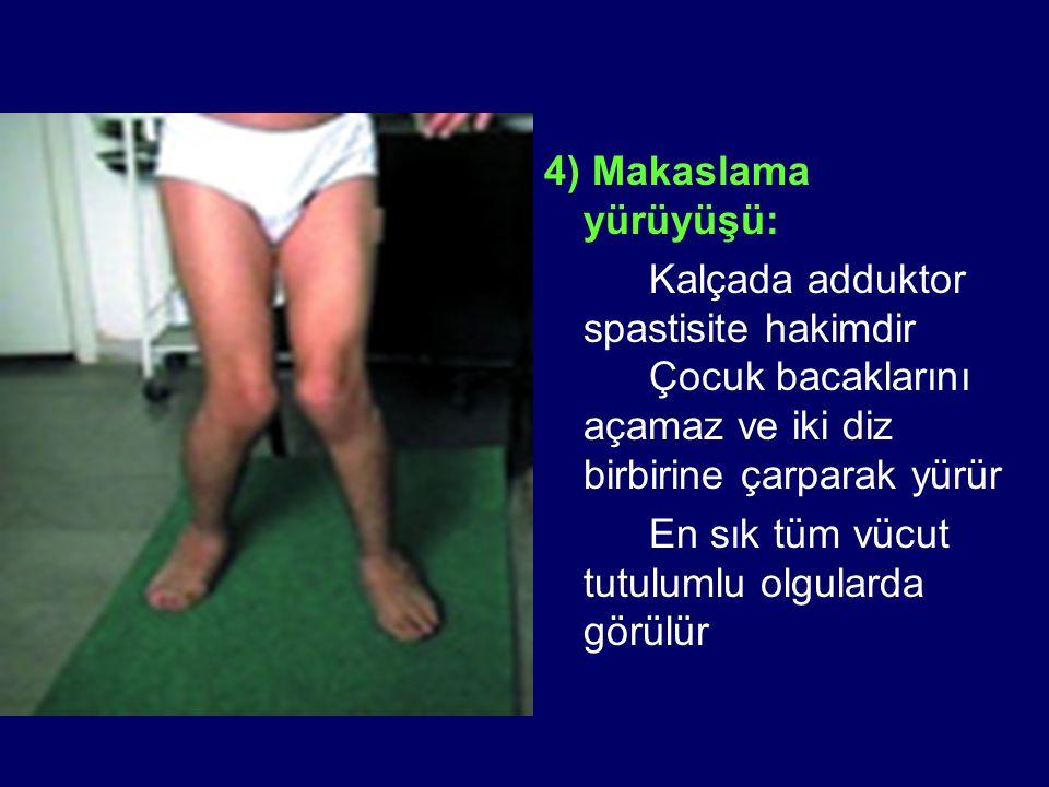 4) Makaslama yürüyüşü: Kalçada adduktor spastisite hakimdir Çocuk bacaklarını açamaz ve iki diz birbirine çarparak yürür En sık tüm vücut tutulumlu ol