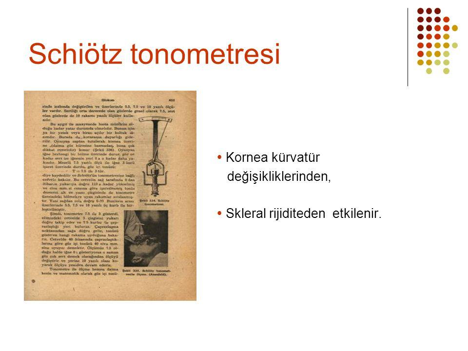 Schiötz tonometresi  Kornea kürvatür değişikliklerinden,  Skleral rijiditeden etkilenir.