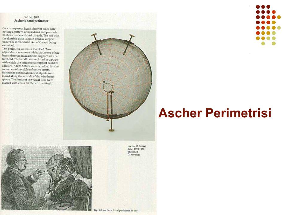 Ascher Perimetrisi