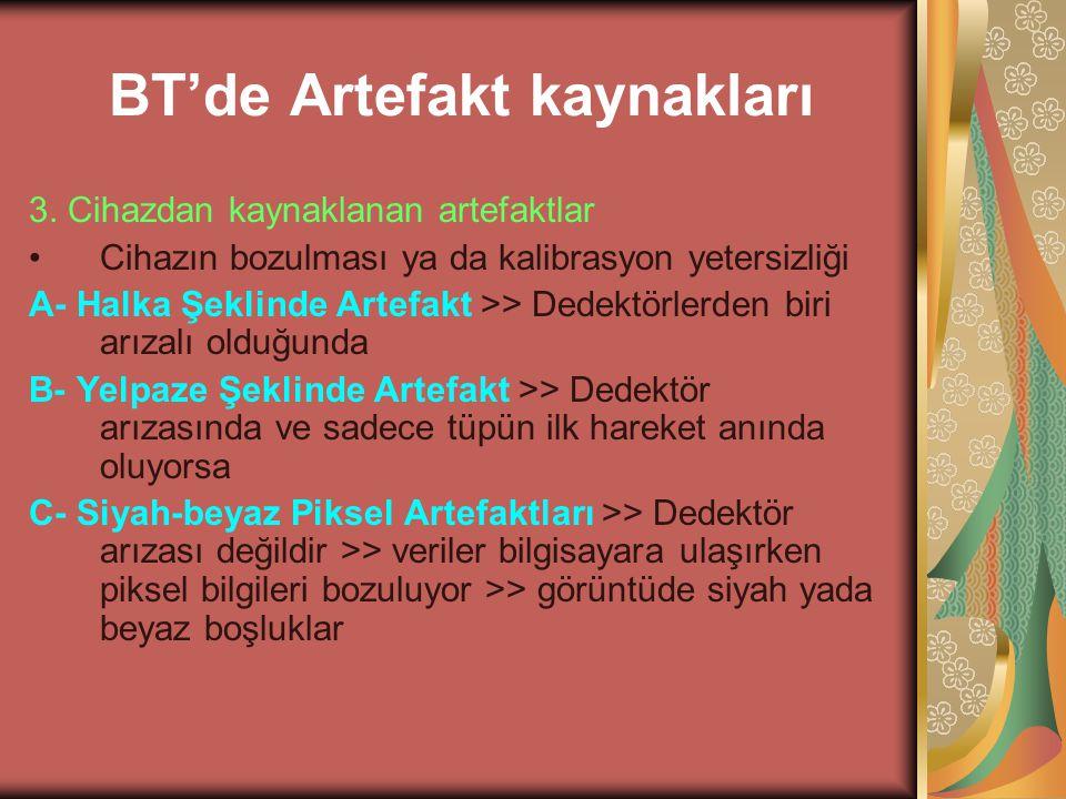 BT'de Artefakt kaynakları 3. Cihazdan kaynaklanan artefaktlar Cihazın bozulması ya da kalibrasyon yetersizliği A- Halka Şeklinde Artefakt >> Dedektörl