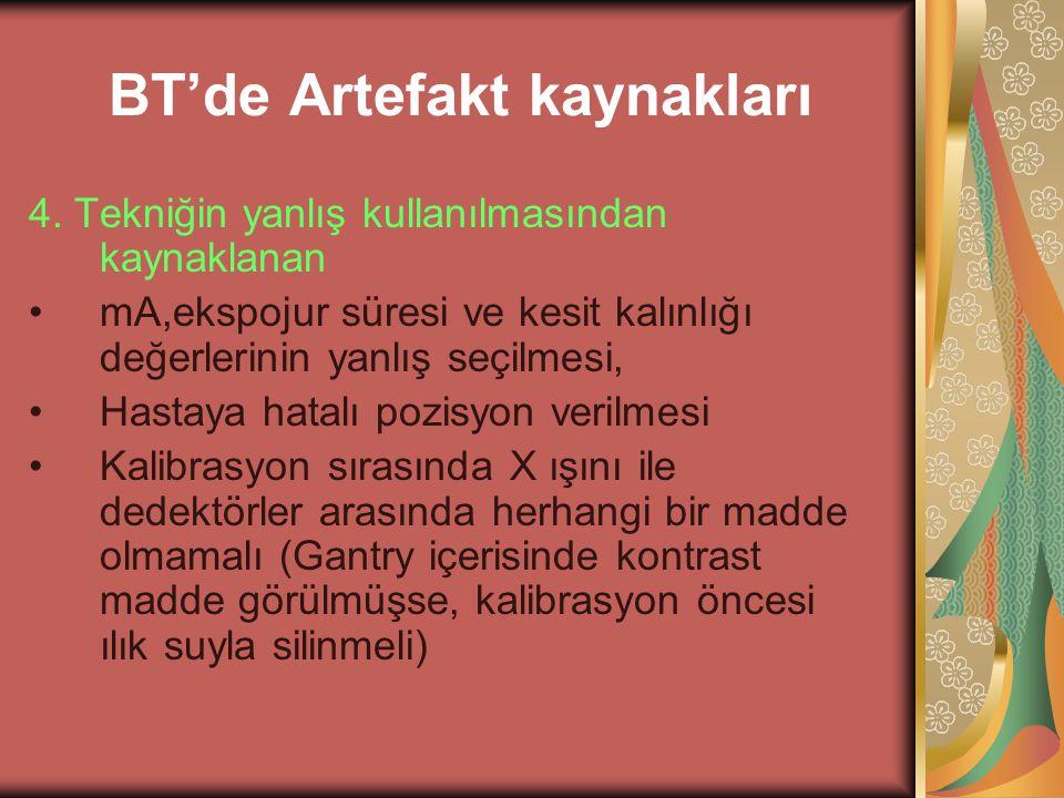 BT'de Artefakt kaynakları 4. Tekniğin yanlış kullanılmasından kaynaklanan mA,ekspojur süresi ve kesit kalınlığı değerlerinin yanlış seçilmesi, Hastaya