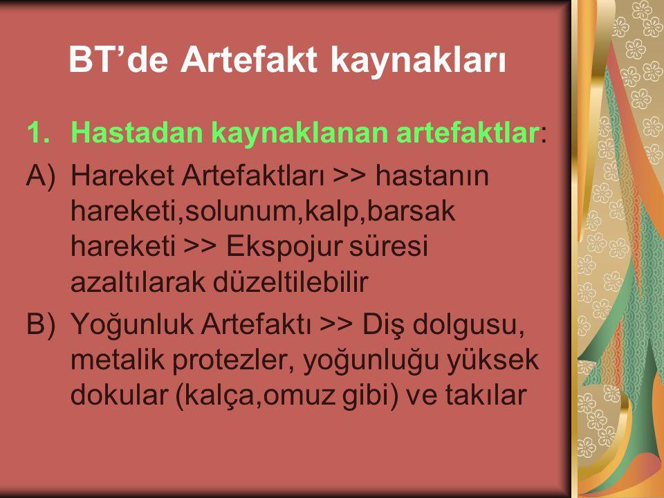 BT'de Artefakt kaynakları 1.Hastadan kaynaklanan artefaktlar: A)Hareket Artefaktları >> hastanın hareketi,solunum,kalp,barsak hareketi >> Ekspojur sür