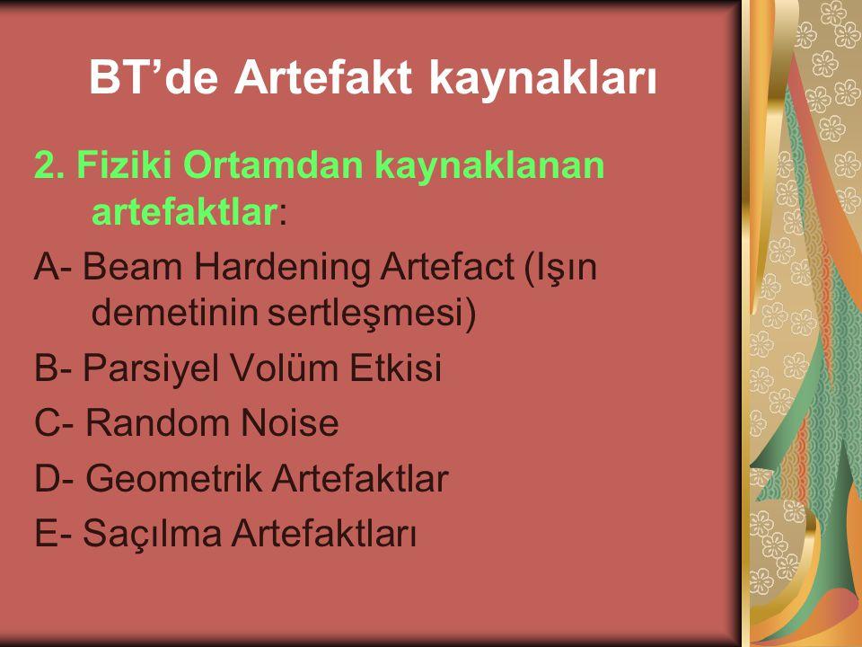 BT'de Artefakt kaynakları 2. Fiziki Ortamdan kaynaklanan artefaktlar: A- Beam Hardening Artefact (Işın demetinin sertleşmesi) B- Parsiyel Volüm Etkisi