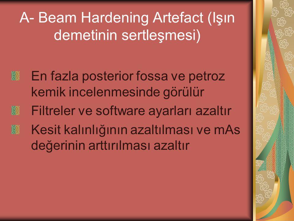 A- Beam Hardening Artefact (Işın demetinin sertleşmesi) En fazla posterior fossa ve petroz kemik incelenmesinde görülür Filtreler ve software ayarları