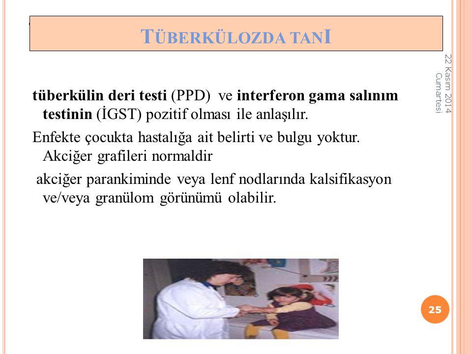 TÜBERKÜLOZUN TANISI tüberkülin deri testi (PPD) ve interferon gama salınım testinin (İGST) pozitif olması ile anlaşılır. Enfekte çocukta hastalığa ait