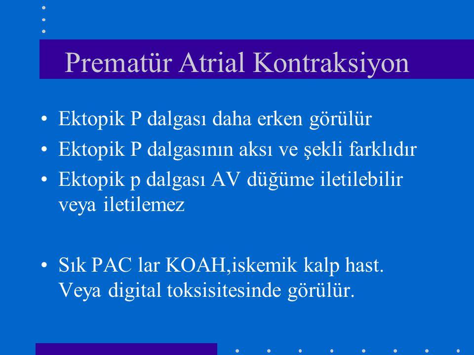 Prematür Atrial Kontraksiyon Ektopik P dalgası daha erken görülür Ektopik P dalgasının aksı ve şekli farklıdır Ektopik p dalgası AV düğüme iletilebilir veya iletilemez Sık PAC lar KOAH,iskemik kalp hast.
