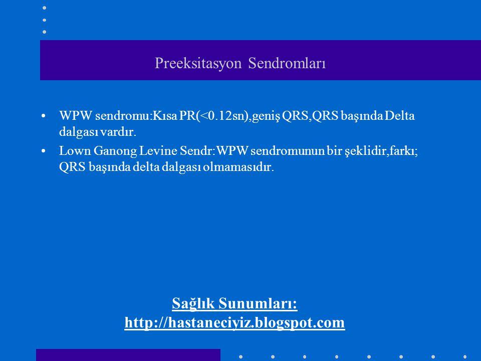 Preeksitasyon Sendromları WPW sendromu:Kısa PR(<0.12sn),geniş QRS,QRS başında Delta dalgası vardır. Lown Ganong Levine Sendr:WPW sendromunun bir şekli