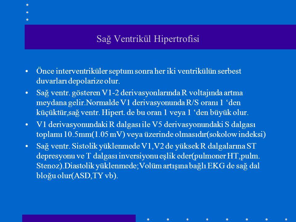Sağ Ventrikül Hipertrofisi Önce interventriküler septum sonra her iki ventrikülün serbest duvarları depolarize olur. Sağ ventr. gösteren V1-2 derivasy