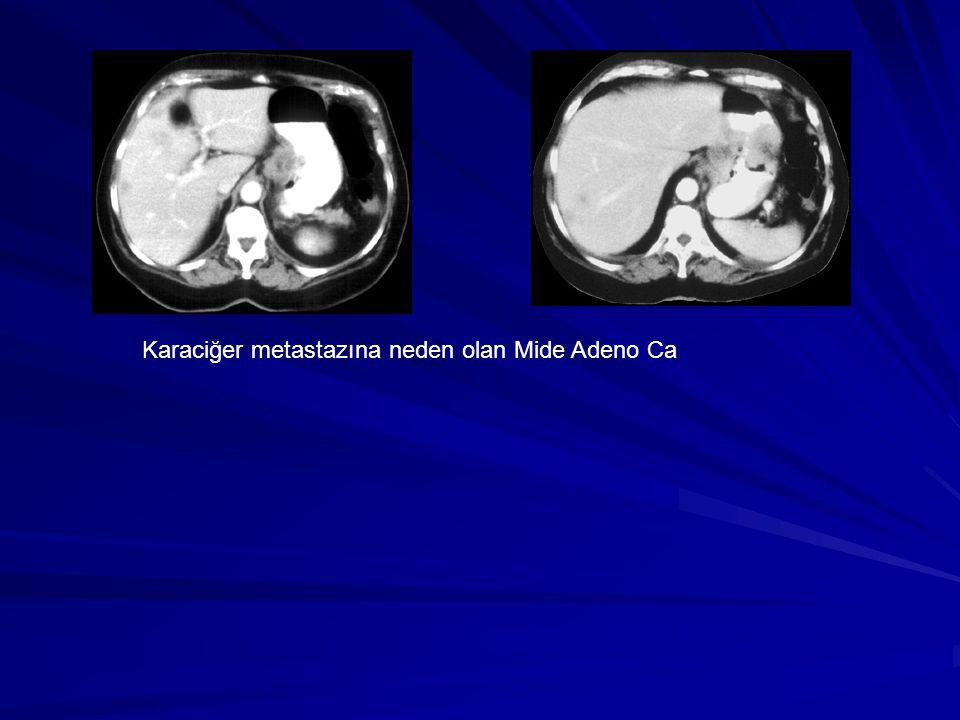 Karaciğer metastazına neden olan Mide Adeno Ca
