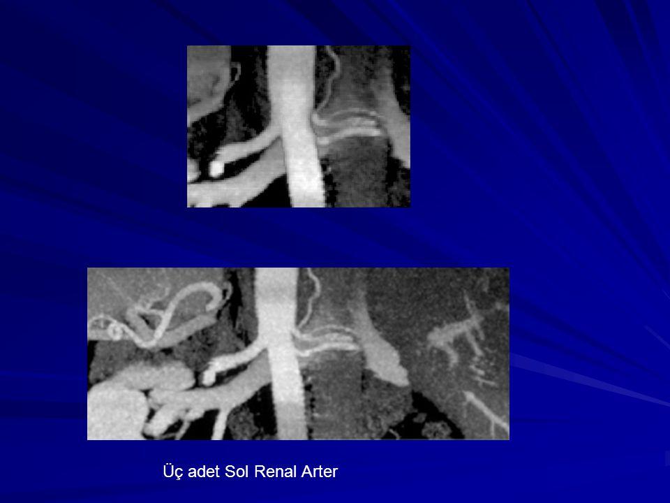 Üç adet Sol Renal Arter