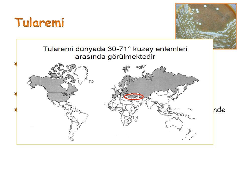 Tularemi, enfektivitesi çok yüksek bir bakteri olan Francisella tularensis' in oluşturduğu Kuzey yarım küreye özgü bir zoonoz Hastalık Avrupa ile Asya