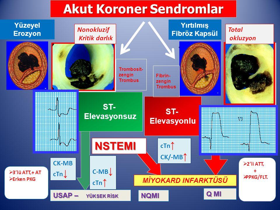 ST- Elevasyonsuz ST- Elevasyonlu Akut Koroner Sendromlar USAP – YÜKSEK RİSK NQMI Q MI NSTEMI MİYOKARD INFARKTÜSÜ Yüzeyel Erozyon Yırtılmış Fibröz Kapsül cTn ↑ CK/-MB ↑ C-MB ↓ cTn ↑ CK-MB cTn ↓ Total okluzyon Nonokluzif Kritik darlık  2'li ATT, +  PPKG/FLT.
