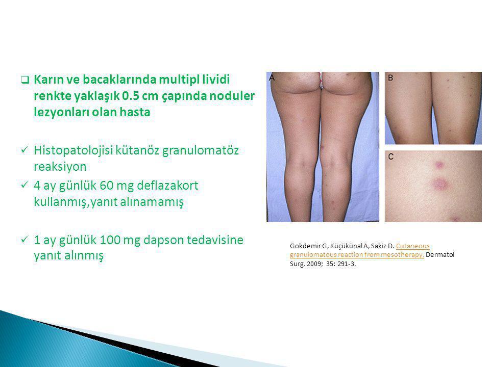  Karın ve bacaklarında multipl lividi renkte yaklaşık 0.5 cm çapında noduler lezyonları olan hasta Histopatolojisi kütanöz granulomatöz reaksiyon 4 a