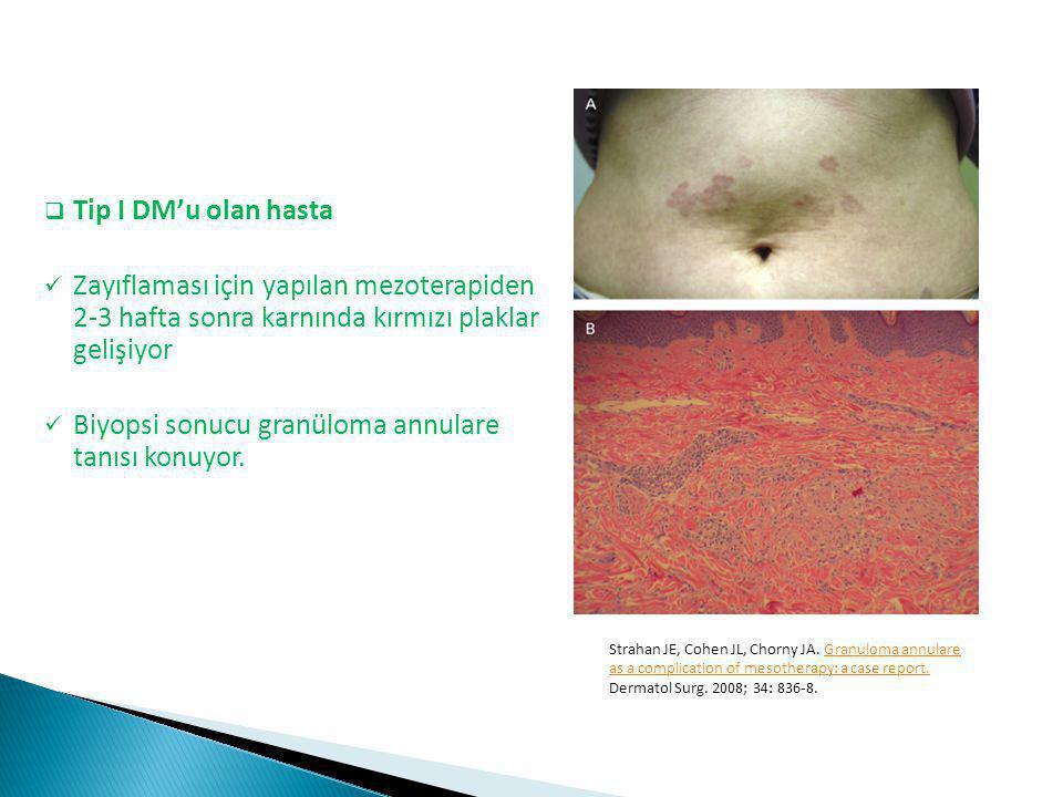  Tip I DM'u olan hasta Zayıflaması için yapılan mezoterapiden 2-3 hafta sonra karnında kırmızı plaklar gelişiyor Biyopsi sonucu granüloma annulare ta
