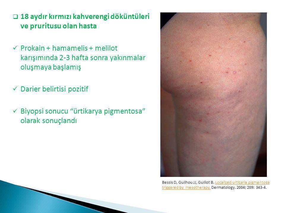  18 aydır kırmızı kahverengi döküntüleri ve pruritusu olan hasta Prokain + hamamelis + melilot karışımında 2-3 hafta sonra yakınmalar oluşmaya başlam