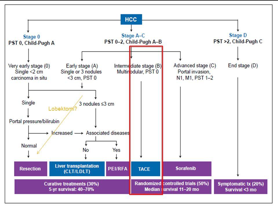  Sorafenib:  Multikinaz inhibitor  Antiangiogenik  Kemoembolizasyona yanıt vermeyen HCC ▪ 6 ayda; 3 kez yapılan TAKE yanıt yoksa ▪ İleri evre HCC