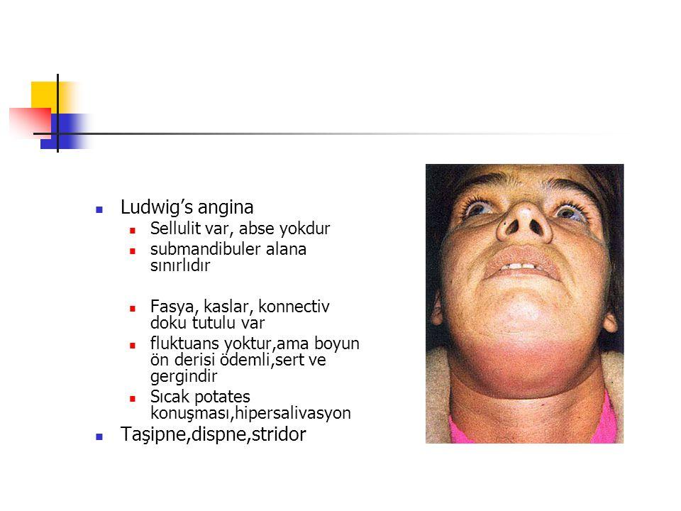 Ludwig's angina Sellulit var, abse yokdur submandibuler alana sınırlıdır Fasya, kaslar, konnectiv doku tutulu var fluktuans yoktur,ama boyun ön derisi ödemli,sert ve gergindir Sıcak potates konuşması,hipersalivasyon Taşipne,dispne,stridor