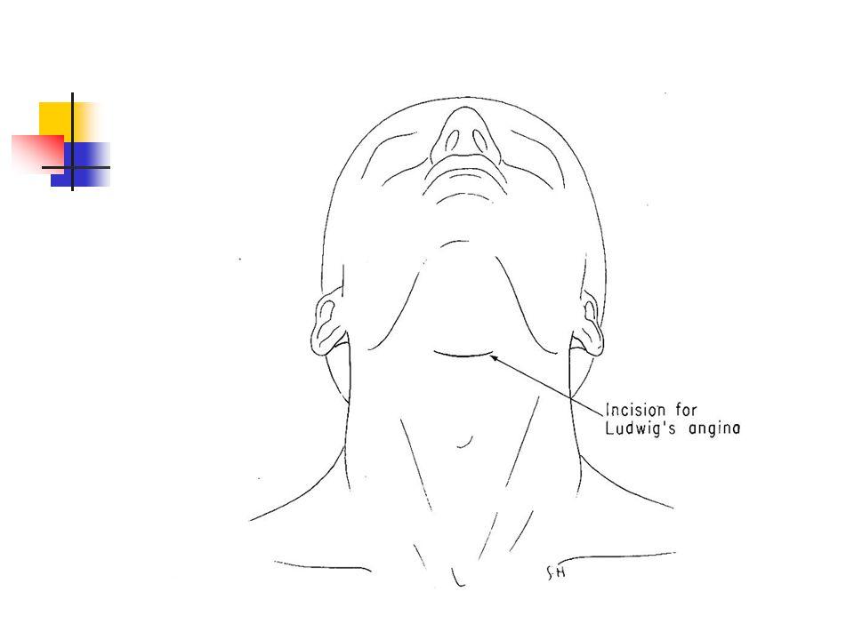 Parapharyngeal alan enf.