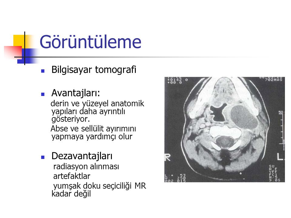 Görüntüleme Bilgisayar tomografi Avantajları: derin ve yüzeyel anatomik yapıları daha ayrıntılı gösteriyor.