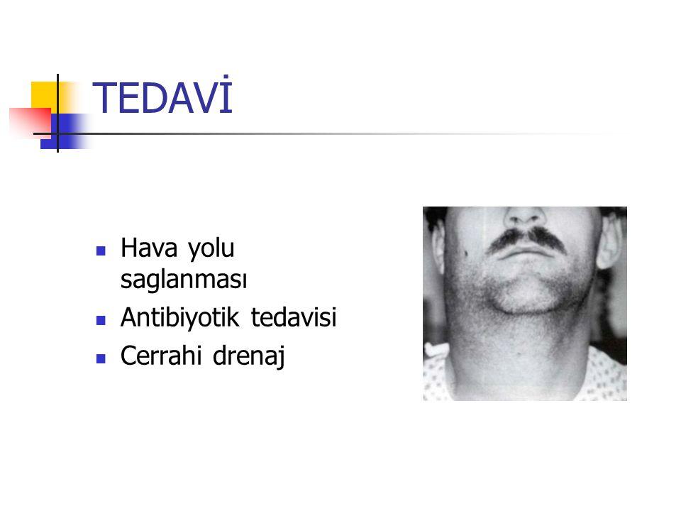 TEDAVİ Hava yolu saglanması Antibiyotik tedavisi Cerrahi drenaj
