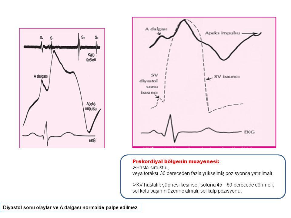 KARDİYOVASKÜLER HASTALIKLARDA SPESAİFİK PREKORDİYAL HAREKETLER (I): Mitral regürjitasyonu: Hafif orta MR'de ; normal - hiperdinamik.