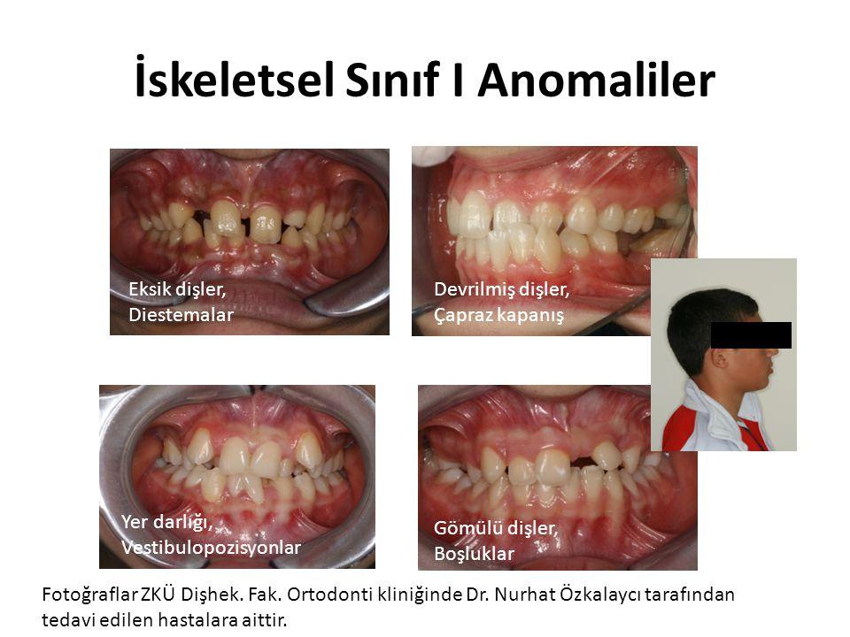 İskeletsel Sınıf I Anomaliler Eksik dişler, Diestemalar Devrilmiş dişler, Çapraz kapanış Yer darlığı, Vestibulopozisyonlar Gömülü dişler, Boşluklar Fo