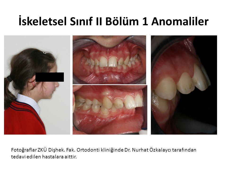 İskeletsel Sınıf II Bölüm 1 Anomaliler Fotoğraflar ZKÜ Dişhek. Fak. Ortodonti kliniğinde Dr. Nurhat Özkalaycı tarafından tedavi edilen hastalara aitti
