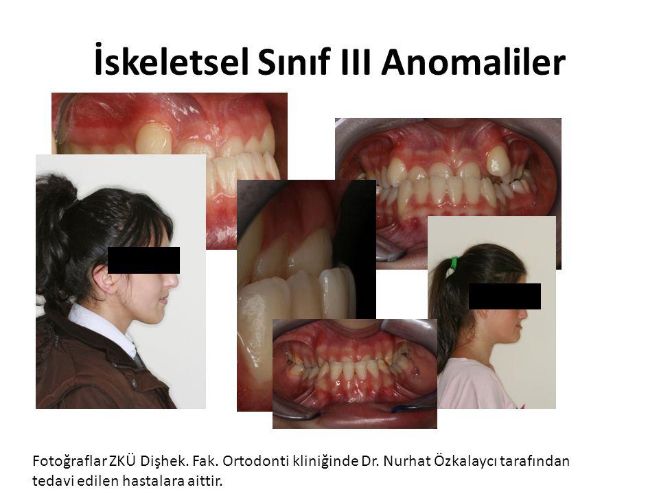 İskeletsel Sınıf III Anomaliler Fotoğraflar ZKÜ Dişhek. Fak. Ortodonti kliniğinde Dr. Nurhat Özkalaycı tarafından tedavi edilen hastalara aittir.