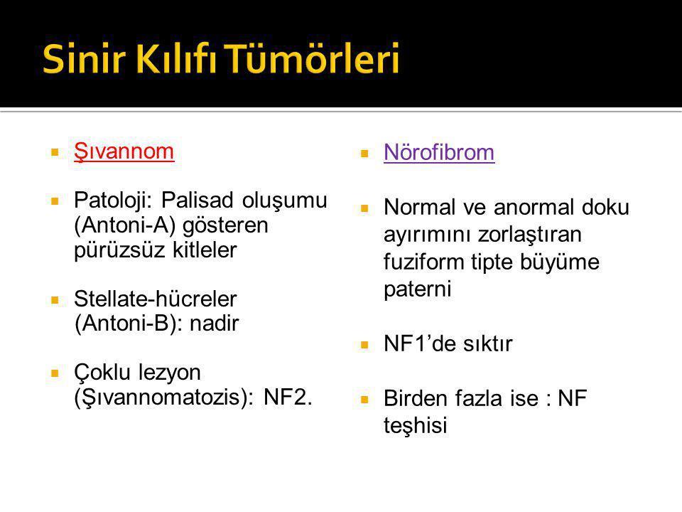  Şıvannom  Patoloji: Palisad oluşumu (Antoni-A) gösteren pürüzsüz kitleler  Stellate-hücreler (Antoni-B): nadir  Çoklu lezyon (Şıvannomatozis): NF2.