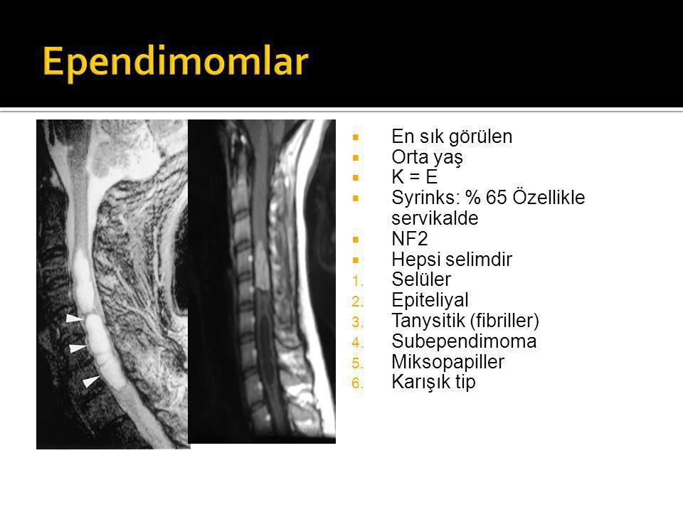  En sık görülen  Orta yaş  K = E  Syrinks: % 65 Özellikle servikalde  NF2  Hepsi selimdir 1.