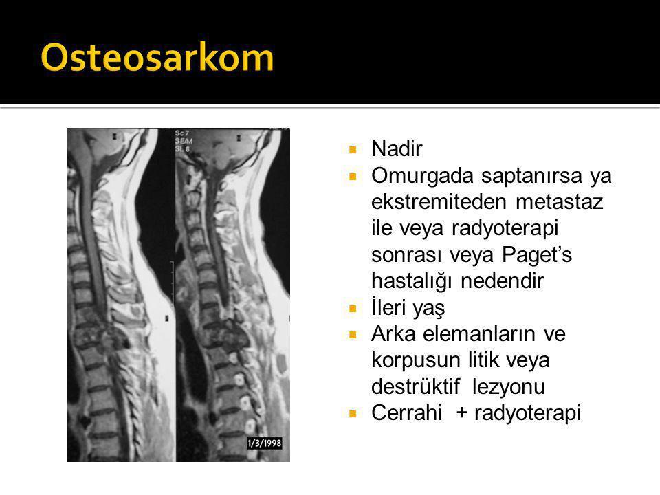  Nadir  Omurgada saptanırsa ya ekstremiteden metastaz ile veya radyoterapi sonrası veya Paget's hastalığı nedendir  İleri yaş  Arka elemanların ve korpusun litik veya destrüktif lezyonu  Cerrahi + radyoterapi
