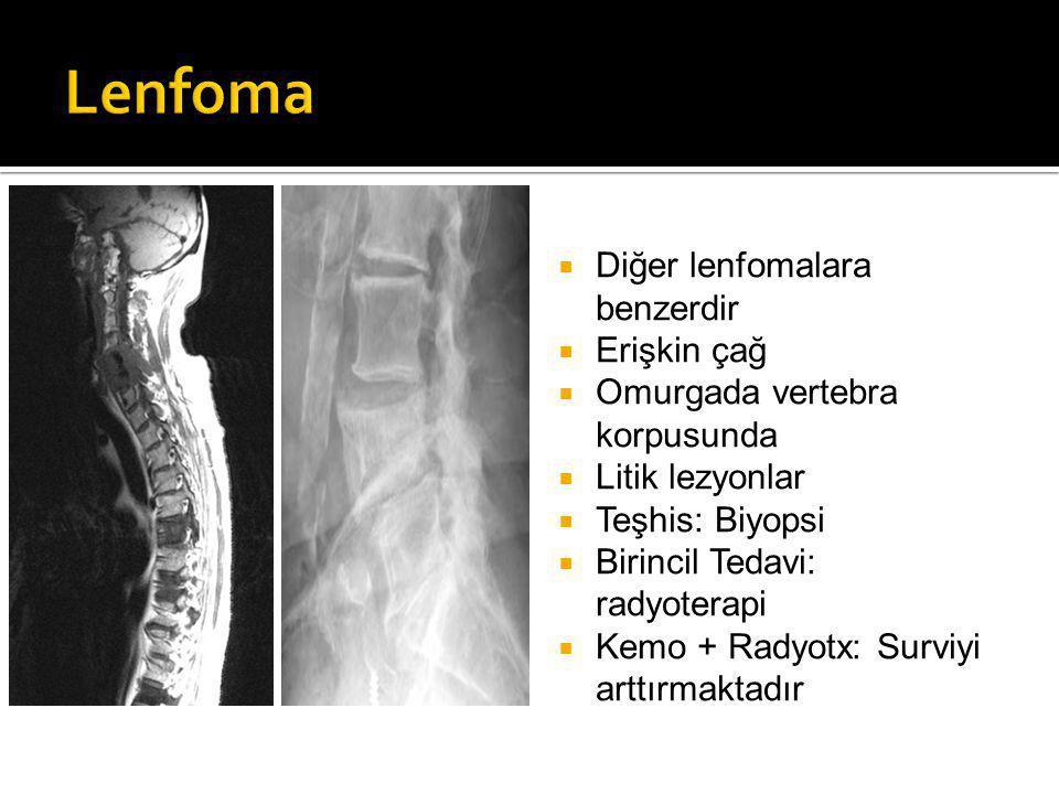  Diğer lenfomalara benzerdir  Erişkin çağ  Omurgada vertebra korpusunda  Litik lezyonlar  Teşhis: Biyopsi  Birincil Tedavi: radyoterapi  Kemo + Radyotx: Surviyi arttırmaktadır