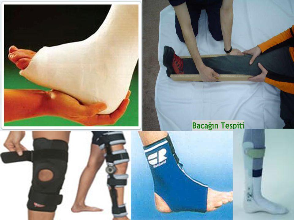ÖNLEMLER G)Ayak bileği bandajı(Taping): Futbolda ve basketbolda uygulanan bu tip bandajların ayak bileği burkulmalarının sıklığı ve tekrarlarını azalttığı çalışmalarla gösterildi.