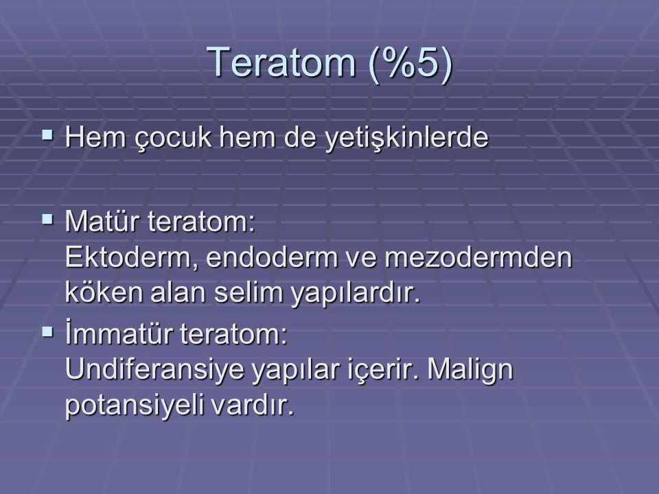 Teratom (%5)  Hem çocuk hem de yetişkinlerde  Matür teratom: Ektoderm, endoderm ve mezodermden köken alan selim yapılardır.
