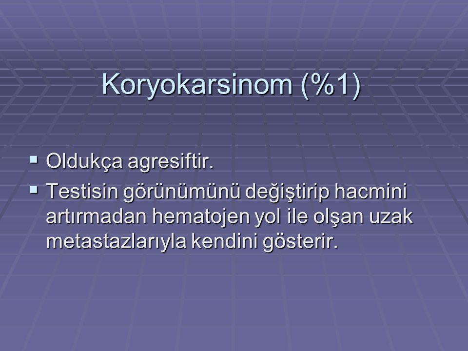 Koryokarsinom (%1)  Oldukça agresiftir.  Testisin görünümünü değiştirip hacmini artırmadan hematojen yol ile olşan uzak metastazlarıyla kendini göst