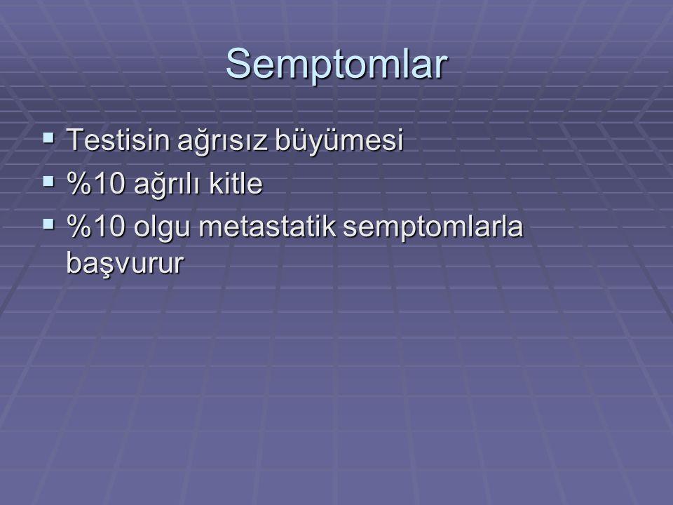 Semptomlar  Testisin ağrısız büyümesi  %10 ağrılı kitle  %10 olgu metastatik semptomlarla başvurur