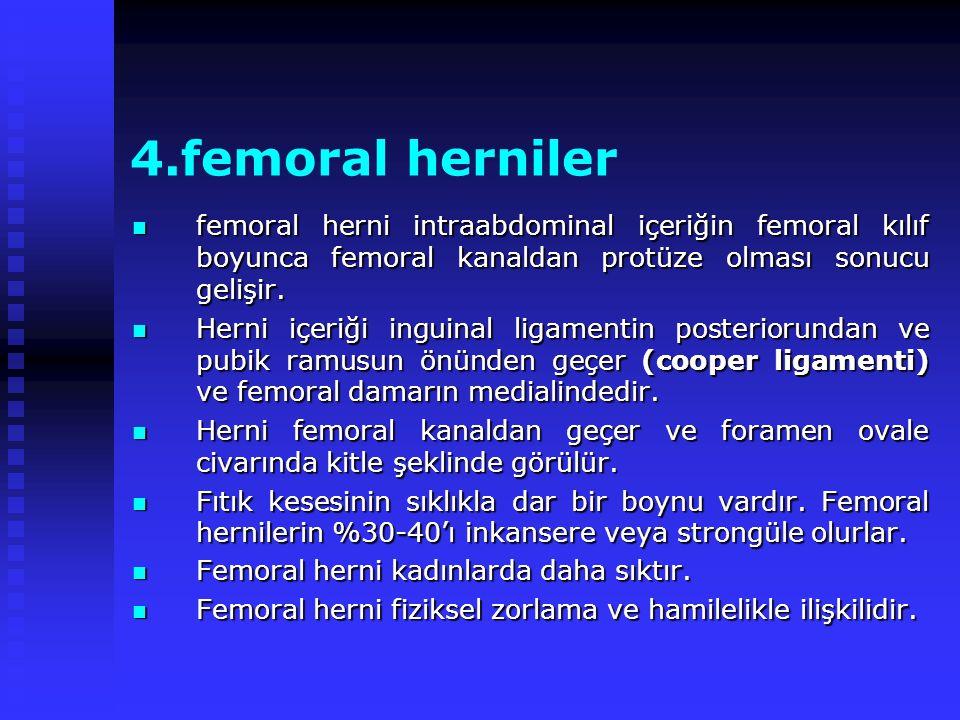 4.femoral herniler femoral herni intraabdominal içeriğin femoral kılıf boyunca femoral kanaldan protüze olması sonucu gelişir.